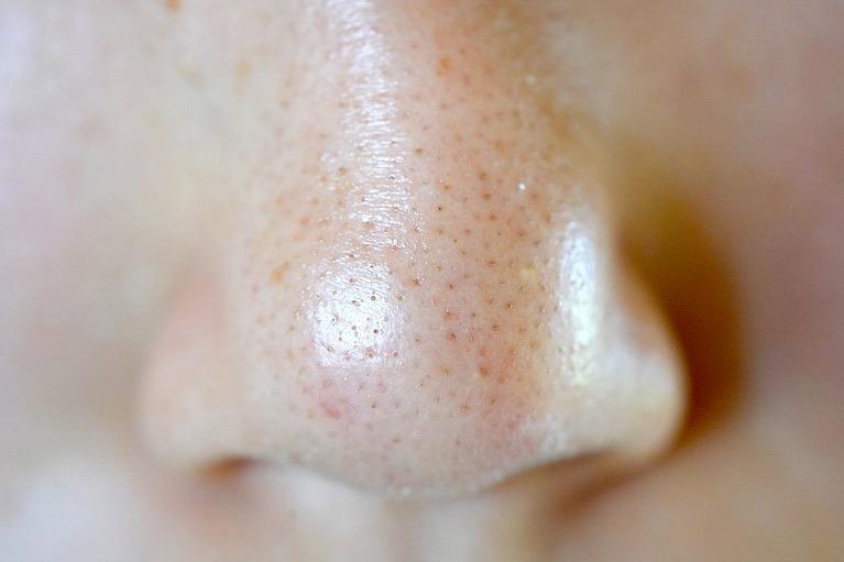 鼻の症状と病気